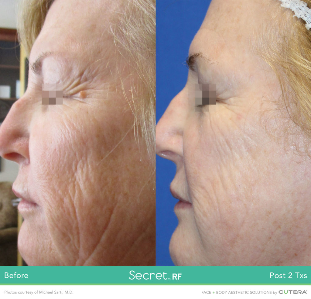 Reduce fine lines, wrinkles and tighten skin with Secret RF treatment