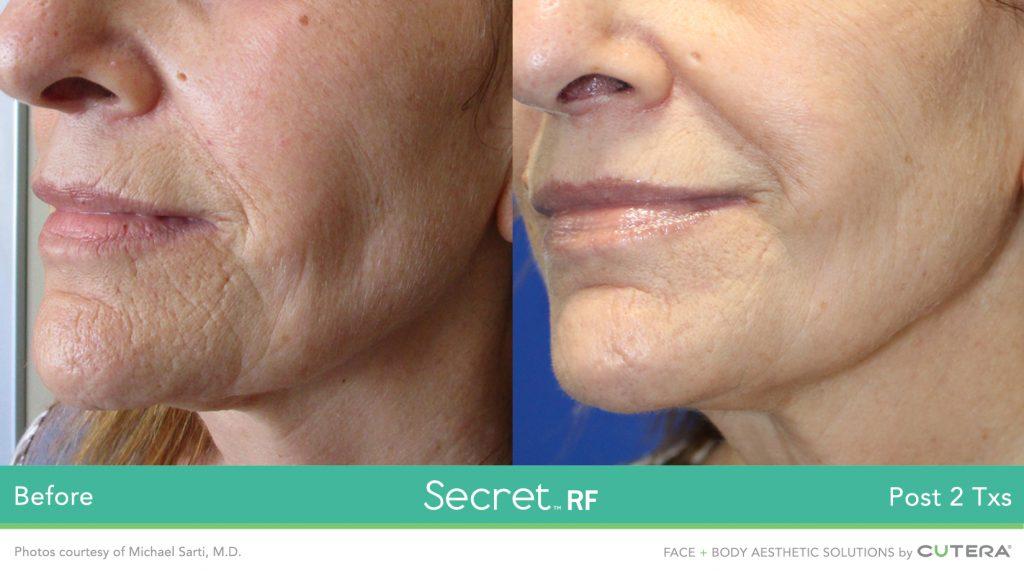 Secret RF tightens skin on the face.