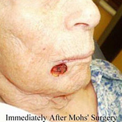 After Mohs' Surgery