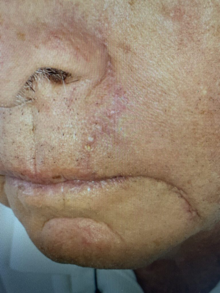 Lip reconstruction by Dr. Bader